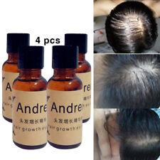 Haute Qualité Andrea Croissance des Cheveux Perte De Cheveux Essence Liquide 20