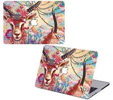 Fashion Hard Shell Case Cover& Keyboard Skin Cover For Apple Mac Book Macbook HK