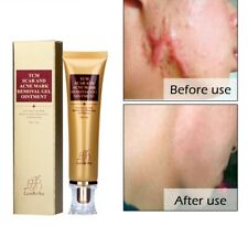 Stretch Marks Remove Acne Scar Removal Treatment Cream Face Whitening Pimple Gel