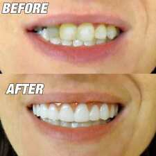 SnapOn Teeth Cosmetic Secure Smile Instant Natural Veneers Dental False One Size