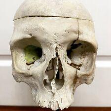 Crane Humain Medicalise / Skull Human / Vanite / Cutiosite / Curiosity / Rare