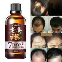 Fast Hair Growth Dense Regrowth Ginger Serum Oil Anti Loss Treatment Essence Bin