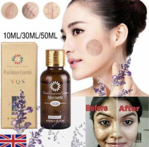 Skin Whitening Oil Brightening Dark Spot Removal (30ml) (VQS) Best Quality