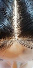 Human Hair Lace Topper For Alopecia Areata Thinning Hair Hair Loss