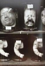 Stampa incorniciata-Vittoriano Medici stranezze teste mozzate e le braccia Baby (gotico)