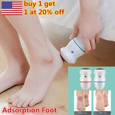 Foot Rasp Care Callus Feet File Hard Dead Skin Safe Remover Exfoliating Pedicure