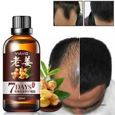 Hair Growth Essence Oil Liquid Preventing Treatment Hair Loss Hair Care Products