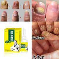 15ml Nail Fungal Treatment Onychomycosis Removal Anti Fungus Nails Repair Liquid