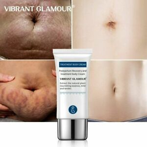 VIBRANT GLAMOUR Crocodile Stretch Marks Remover Cream Pregnancy Scars