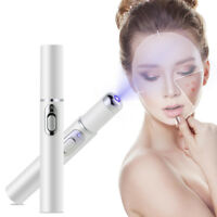 Miraclepen Spots Removal Blue Light Therapy Acne Laser Pen Smartgear Factory