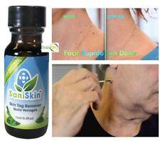 Sani Skin Skim Away wart remover tag away tag remover quita verruga SaniSkin