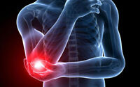 Tennis Elbow Treatment Pain Cream - Stop Joint Pain in 47 Seconds