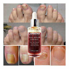 1XAnti Fungal Nail Treatment Cream Toe Finger Nails Fungus Onychomycosis Remover