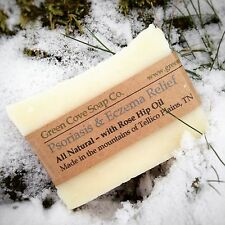 Psoriasis & Eczema Relief Soap - All Natural - Works - Green Cove Soap Company
