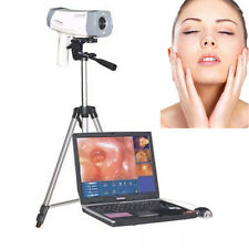 SONY Gynecology 800,000 Pixels Digital Video Electronic Colposcope RCS-400 Fast