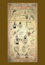 Grande STAMPA INCORNICIATA-il gentleman's Guide all' amputazione (Anatomia Medicina)