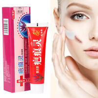 Removal Acne Cream Spots Scar Stretch Marks Treatment Effective Face Skin Care