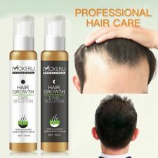 Natural Anti Hair Loss Treatment Fast Hair Regrowth Spray Men Women 2pcs/Pack