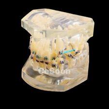 Denti Studio modello di trattamento ortodontico Malocclusione studiare con staff