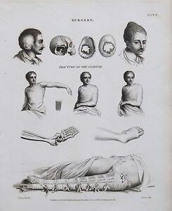 1820 Surgery Medical Fractures Clavicle Splints Bandages Antique Print Rees