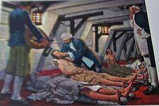 Medical Art James Lind-Conqueror of Scurvy  Vintage Offset Litho