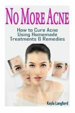 No More Acne : How to Cure Acne Using Homemade Treatments and Remedies by...