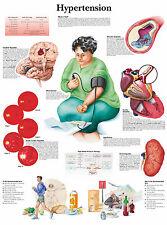 A3 medical poster – hypertension (pression artérielle élevée texte livre anatomie médecin)