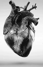 Framed Print - Black & White Photo of a Human Heart (Picture Medical Pathology)