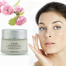 New Anti Melasma Dark Age Spots Freckle Skin Whitening Cream Lightening