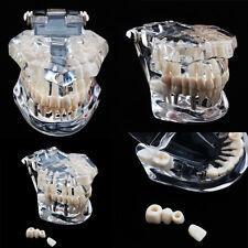 Zahnmodell Gebiss Modell Zahnpflegemodell Zahnprothese Zahn Arzt Dental Demo DE