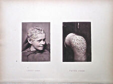 Hand Colored Collotypes From Photographic Illustrations of Skin Diseases (X)