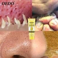 OEDO Gold Collagen Mask Face Whitening Shrink Pore Improve Rough Skin Shills Bla