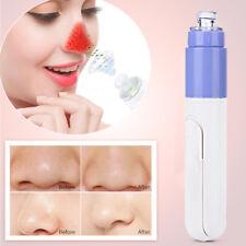 Pulizia elettrica dei pori Facciale Detergente Aspirazione Rimozione Punti Neri