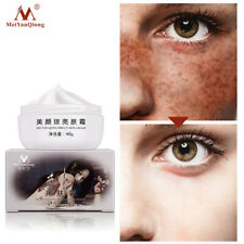 Strong Effect Whitening Freckle Cream 40g Remove Melasma Acne Dark Spot Pigment✔