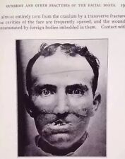 War Surgery Of The Face Medical Plastic Surgery Graphic Images Surgeons 1919