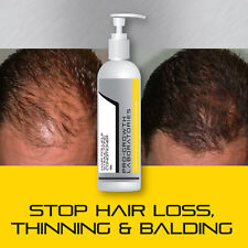 PRO-GROWTH MENS HAIR  GROWTH CONDITIONER GROW FULL HEAD OF HAIR FAST BALD