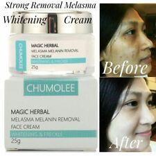 Strong Removal Melasma Whitening Cream Melanin Pigment Freckle Speckle Spots
