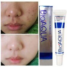 BioAqua Skin Face Care Acne Treatment Removal Cream Spots Scar Blemish Marks AE