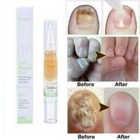 Nail Repair Anti Fungal Nail Infection Paronychia Onychomycosis Treatment Pen