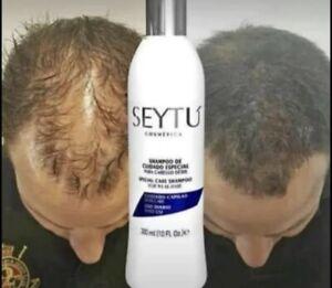 SEYTU Omnilife Shampoo Cuidado Especial Caida De Cabello Débil Weak Hair