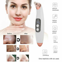 6 PCS Vacuum Acne Pore Cleaner Blackhead Remover 3 Gears Electric Face Cleanser