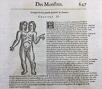 Twin Hermaphrodites 1614 Gémellité Autun Verona Italy Turin Gynecology