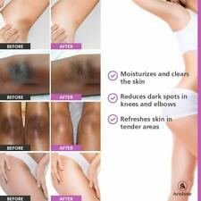 Whitening Cream Body Skin Armpit Lightening Legs Knees Bleaching Private Parts