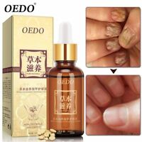 New Fungus Infection Toe Nail Care Anti Fungal Nail Treatment Essence Oil