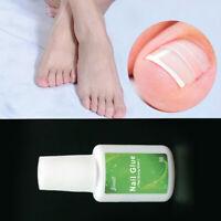 Paronychia Nail Glue Ingrown Toenail Correction Toe Patch Foot Cha Care