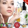 30ml Vitamin C Hyaluronic Acid Whitening Face Snail Serum Anti-Aging Skin Care