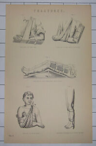 FRACTURES - Fore Arm ~ Thigh With Splints ~ Collar Bone ~  Vintage c1890 Print
