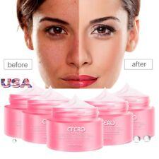 Anti Aging Face Care Cream Dark Spot Remover Skin Lightening Whitening Bleaching