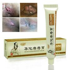 Chinese Herbal Hemorrhoids Cream Ointment Internal External Anal Cream DICTAMNI