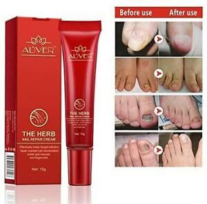 Premium The Herb Nail Repair Cream Gel Remove Fungal Toe Finger Nail Infection